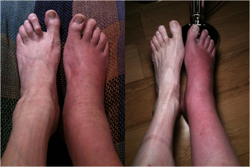 Living with complex regional pain syndrome and bone marrow oedema